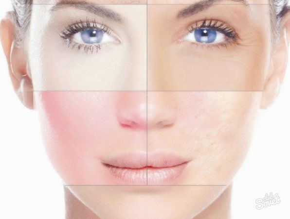 Чистка лица и определение типа кожи на Women Planet